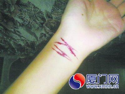 手被刀割流血的囹�a_割腕女晕厥有男子要抱她走 热心路人阻止等120
