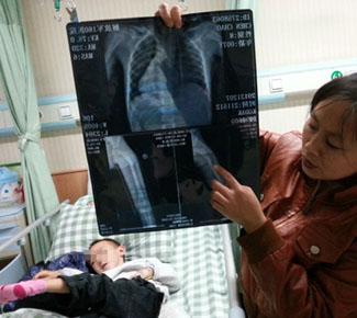 6岁先天性腭裂男童被打骨折 警方万元悬赏凶手