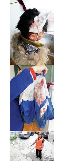 贵阳嘉润路9岁女孩遭5条恶犬撕咬5分钟 全身血迹斑斑