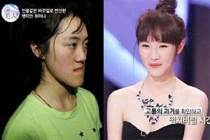 韩国整容真人秀《Let美人》新季开播 盘点往期选手恐龙变身对比照
